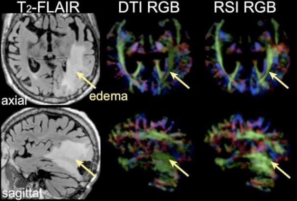 high-grade glioma left occipital lobe
