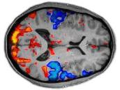 Functional Magnetic Resonance image