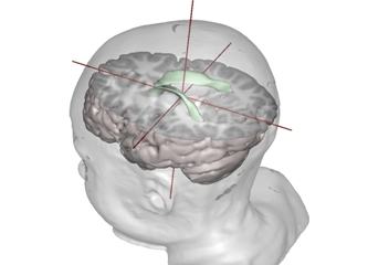 Image showing part of the brain enlarged with autism