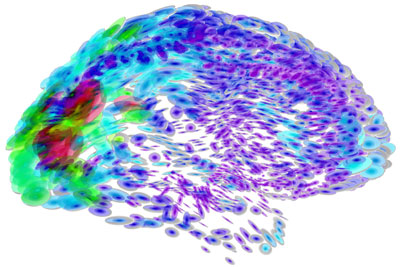 Digitally colored brain structure
