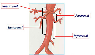 Figure 4. Anatomic Classification of Aortic Aneurysms